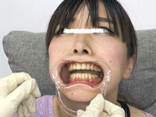 女の子の口内フェチ必見!開口オープナーで剥き出しの銀歯をチェック
