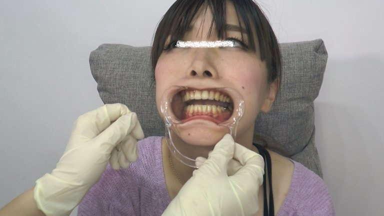 女の子の口内と歯1