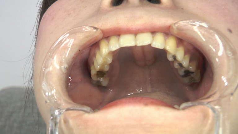 女の子の口内と歯2