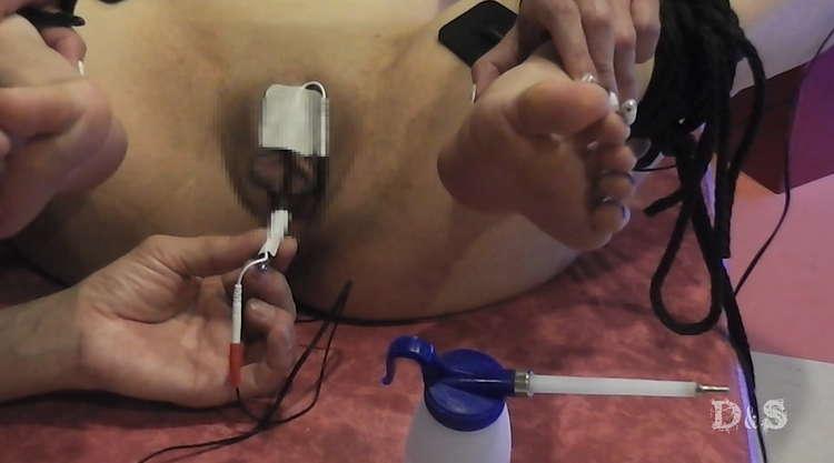 尿道電流SM-4