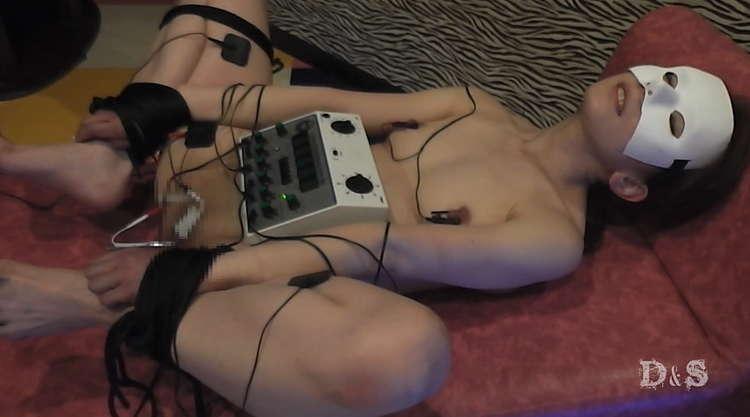 尿道電流SM-8