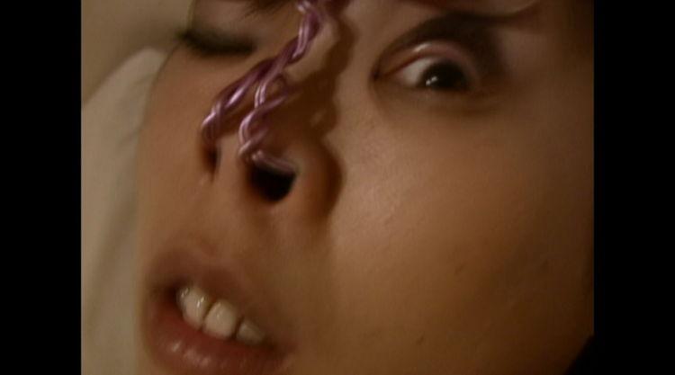 鼻フックで顔面崩壊…2